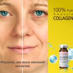 Collagen_ampule
