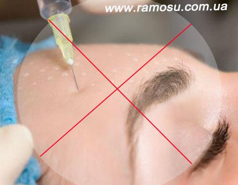 Мезотерапия {focus_keyword} Мезороллер ZGTS для лица 0.5 мм для домашнего ухода Mezoterapiya