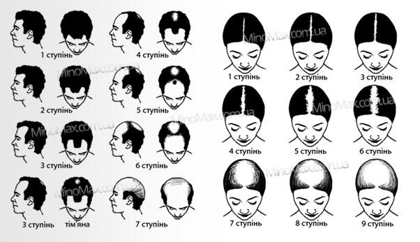 Степень облысения {focus_keyword} Лосьон MinoMax 5% для восстановления и роста волос, 60 мл 2016 02 03 215707