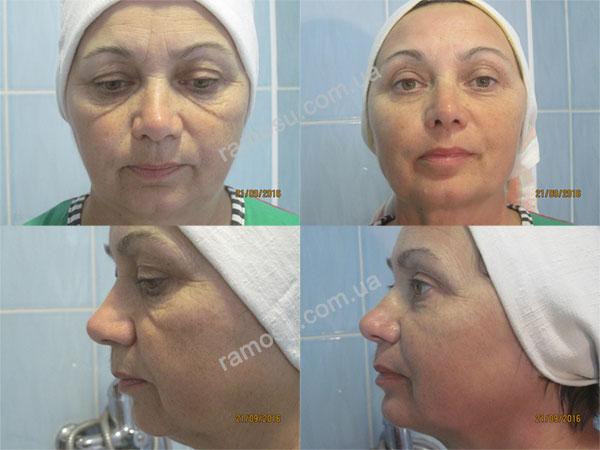 Elysien-ramosu {focus_keyword} Лифтинг-Маска для лица Elysien Multi EX-Lifting, 5 процедур + патчи Dr.Hedison Elysien